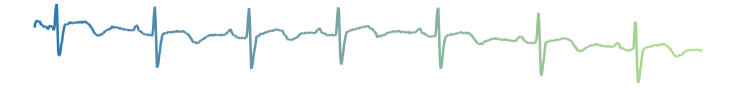 ekg_thick.png